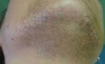 Лечение на повишено окосмяване София-Център