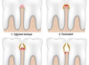 Лечение на венци в Ямбол