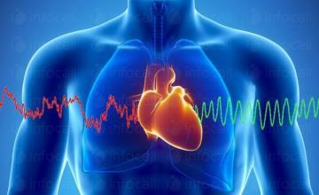 Лечение сърдечно-съдови заболявания в Пловдив-Център - Доктор Теофил Груев