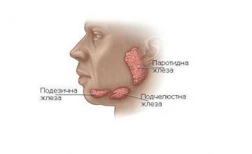 Лечение тумори на слюнчени жлези