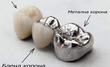 Металокерамика в Кърджали