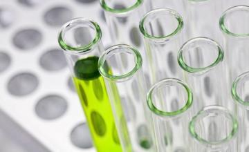 Микробиологични изследвания в Божурище - Медицинска лаборатория Божурище