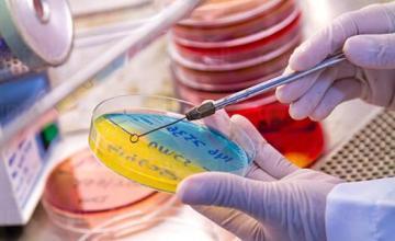 Микробиологични изследвания в София-Лозенец - Медицински център Хестия