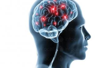 Неврологични консултации в град Ямбол - Доктор Павлина Георгиева