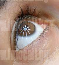 Офталмоскопия в град София-Възраждане - Офталмолог в София, Възраждане