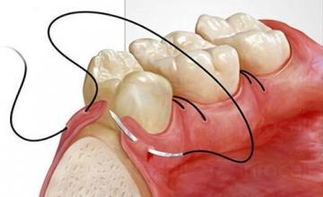 Орална хирургия - Стоматологични услуги Бургас