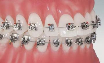 Ортодонтия в Бургас - Стоматологични услуги Бургас