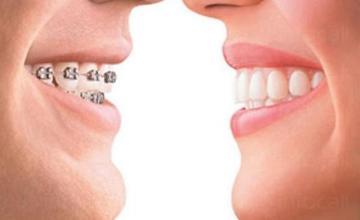 Ортодонтия в град Бургас