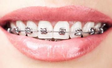 Ортодонтия в Кърджали