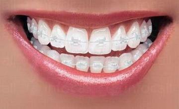 Ортодонтия в Русе