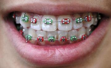 Ортодонтия в София-Лозенец