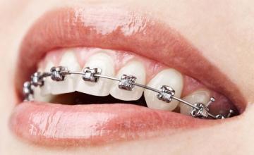 Ортодонтия във Варна-Приморски - Стоматологична клиника Доктор Цветкова