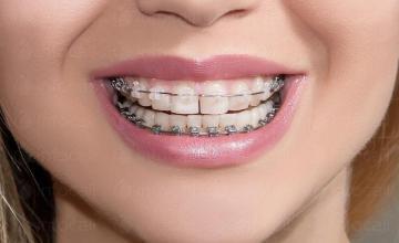 Ортодонтия за деца и възрастни в София-Център - Специализиран ортодонтски кабинет