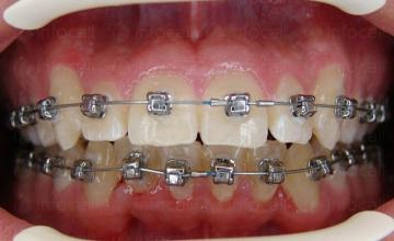 Ортодонтско лечение София-Център