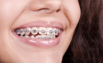 Ортодонтско лечение в Бургас-Възраждане - Доктор Иванка Пашова Обрешкова