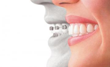 Ортодонтско лечение във Варна