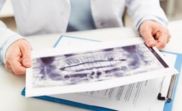 Ортопедична диагностика в Русе