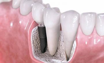 Ортопедична стоматология в Ямбол - Доктор Магдалена Шаламанова