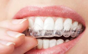 Почистване на зъбен камък с ултразвук в Ямбол