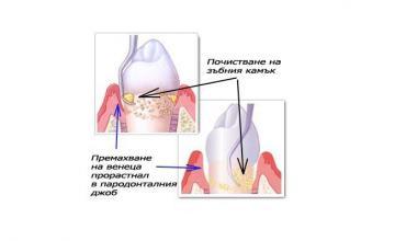 Почистване на зъбен камък в Добрич - Доктор Христина Чеварганова