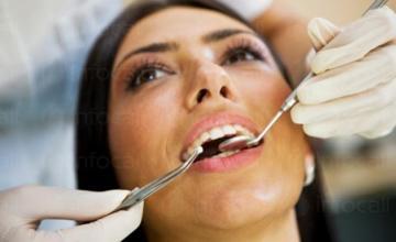 Почистване на зъбен камък във Варна - Доктор Анелия Василева