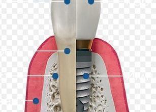 Поставяне на зъбни импланти в София-Банишора - Дентална клиника София-Банишора