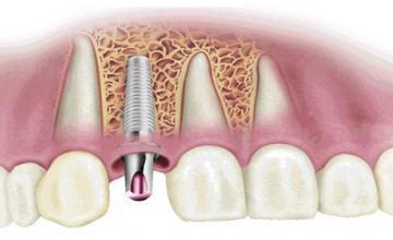 Поставяне на зъбни импланти в София-Илинден
