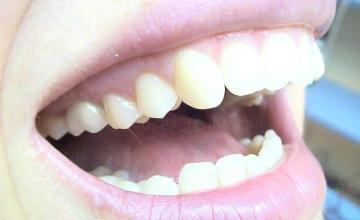 Поставяне на зъбни протези – мостове и коронки в София-Гео Милев