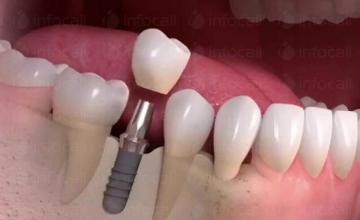 Поставяне зъбни импланти във Варна