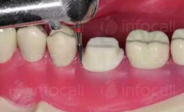 Поставяне зъбни коронки и мостове в Ямбол