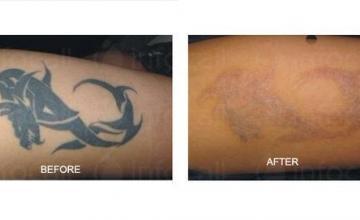 Премахване татуировки в Стара Загора