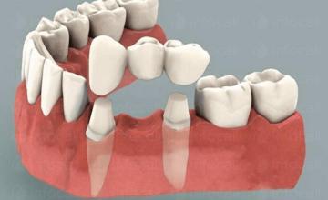 Протетична стоматология Кърджали - Д-р Ерджан Халил