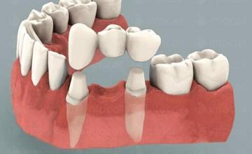 Протетична стоматология във Варна-Приморски - Стоматологична клиника Доктор Цветкова