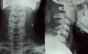 Рентген на шийни прешлени в София-Красно село - Рентгенов кабинет IMD