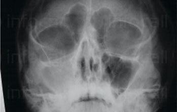 Рентген на синуси в София-Красно село - Рентгенов кабинет IMD