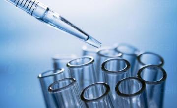 Серологични изследвания на инфекциозни заболявания в Бургас - МДЛ - Медико-Диагностична Лаборатория
