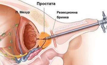 Цистоскопия в град Благоевград - Уролог Благоевград