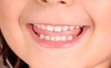 Терапевтична стоматология в Кърджали - Д-р Иван Боспачиев