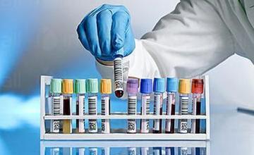 Туморни маркери в Хасково - Медицинска лаборатория Хасково