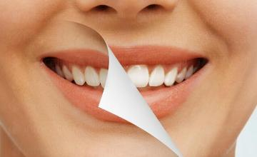 Възстановяване на зъби във Варна