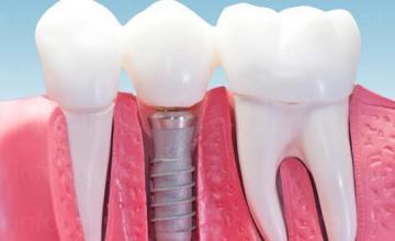 Зъбна имплантология Благоевград