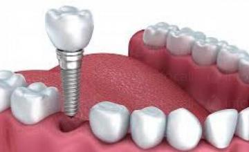 Зъбни протези и зъбно протезиране в Димитровград - Доктор Сузана Йосифова