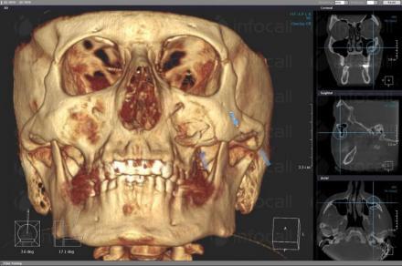 3D скенер в София - МДЛ 3В - Рентген