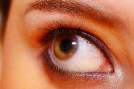 Диагностика и лечение на глаукома във Варна и Търговище. - Доктор Даниела Демирева