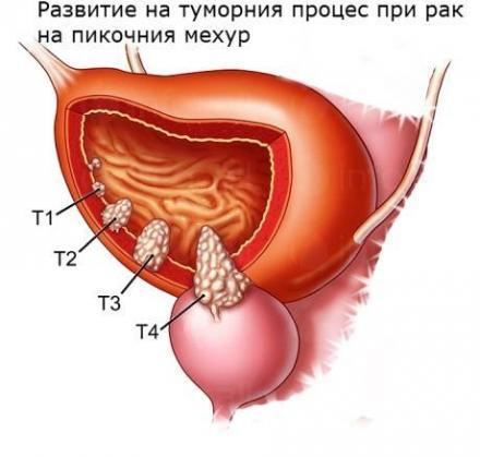Диагностика и лечение на заболявания на пикочен мехур в София - Доц доктор Красимир Янев
