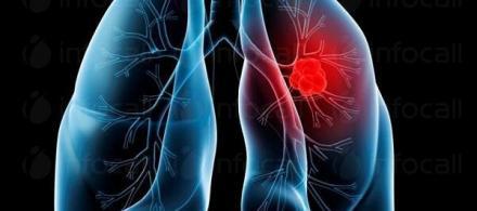 Диагностика на белодробни болести в Смолян - Доктор Златка Шопова