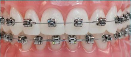 Естетична стоматология в Ямбол - Д-р Мариана Дучева Георгиева