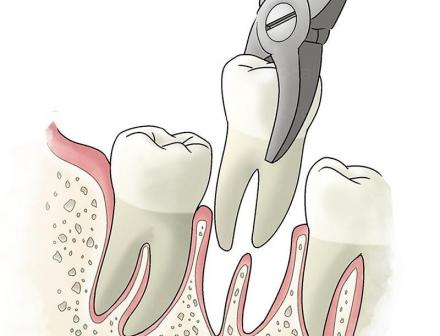 Хирургична стоматология в Ямбол - Доктор Магдалена Шаламанова