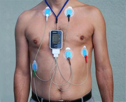 Холтер за артериално налягане в Ямбол - Кардиологичен кабинет Доктор Ингелиев