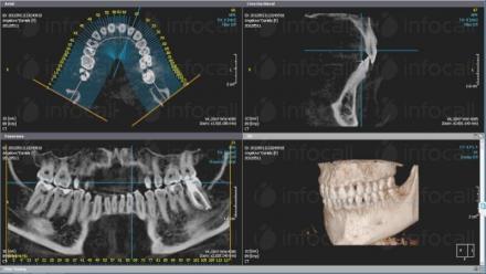 Имплантология в Русе - Дентална клиника Дукови